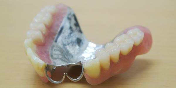 金属床の部分義歯