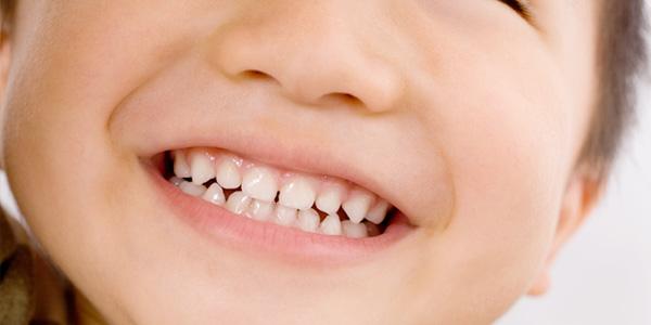 フッ素塗布で虫歯予防を!