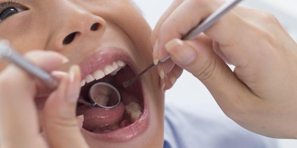 虫歯予防へのフッ素応用