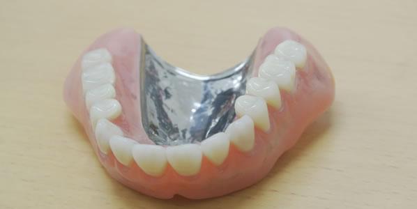 金属床の総入れ歯の特徴